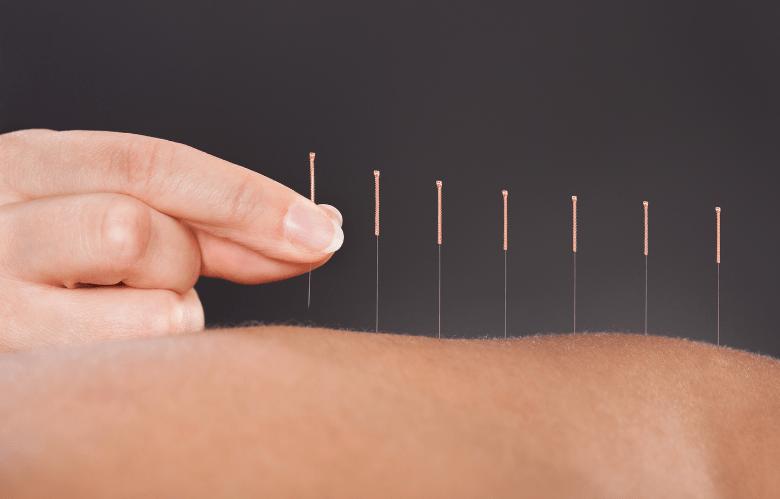 acupuntura (1)