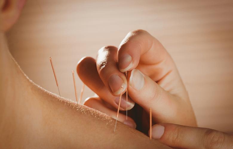 acupuntura (4)
